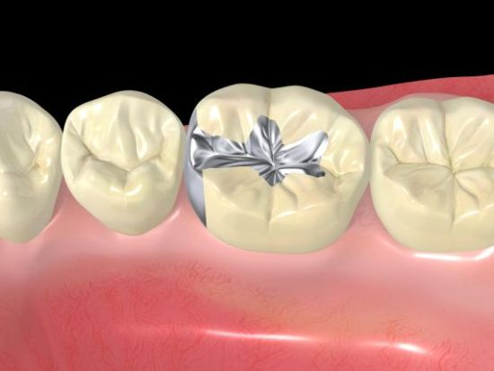 restorative-dentistry-best-dental-sealant-placement-clinic-in-banjarahills-hyderabad-vistadent