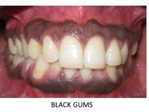black gum treatment by vistadent banjarahills hyderabad