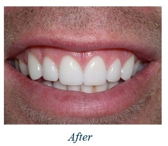 gum surgery treatment by vistadent banjarahills hyderabad