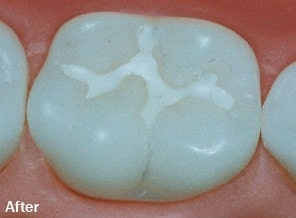 sealant-placement-best-dental-clinic-in-banjarahills-hyderabad-vistadent