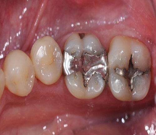 best-dental-clinic-for-amalgam-fillings-in-banjarahills-hyderabad