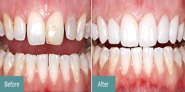 composite-veneering-treatment-hyderabad-Vistadent