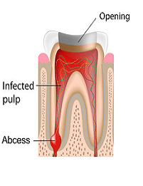 infected-teeth-removal-clinic-best-dentist-in-banjarahills-hyderabad-vistadent