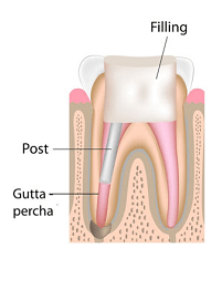endodontic-root-canal-treatment-best-dental-clinic-in-banjarahills-hyderabad