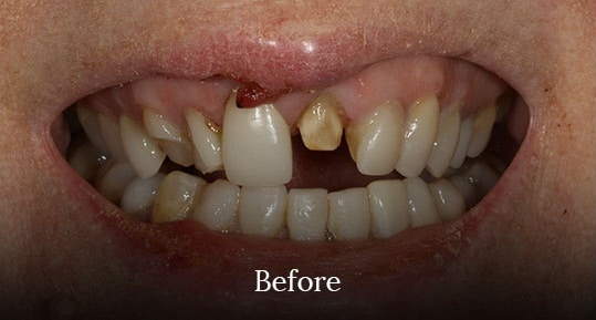 uneven-teeth-before-surgery-by-vistadent-hyderabad-banjarahills