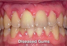 diseased-gums-restoration-best-clinic-in-banjarahills-hyderabad-vistadent