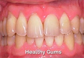 Healthy-gums-dental-treatment-vistadent-hyderabad