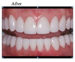 teeth-whitening-best-clinic-in-banjarahills-hyderabad-vistadent