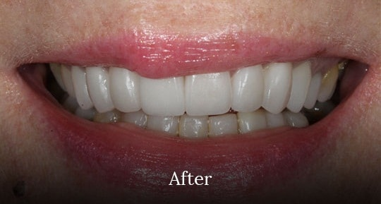 after teeth surgery by vistadent, banjarahills hyderabad