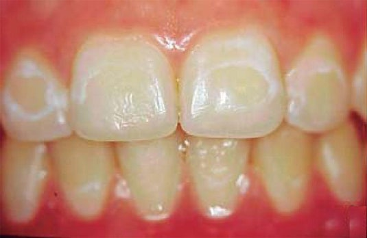 enamel restoration treatment by vistadent banjarahills hyderabad