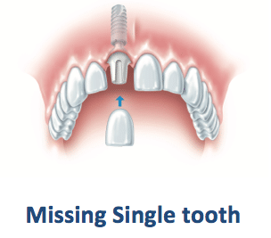 best-missing-teeth-implants-treatment-clinic-banjarahills-hyderabad