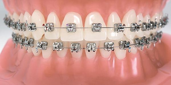 best-orthodontic-treatment-clinic-in-banjarahills-hyderabad