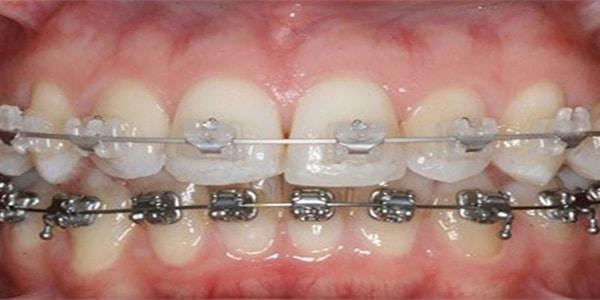 orthodotic-treatment-in-banjarahills-hyderabad-best-dentist-vistadent