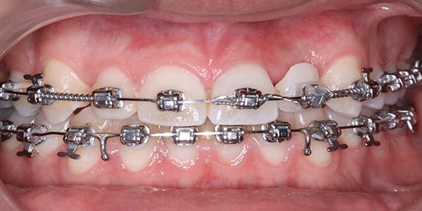 Vistadent -orthodotic-treatment-img4
