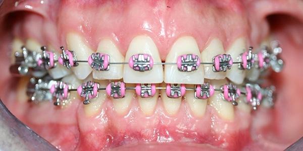 orthodotic-treatment-for-teeth-best-dentist-in-hyderabad-vistadent-banjarahills