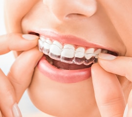 Invisalign In Hyderabad