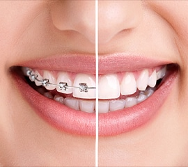 orthodontic treatment in hyderabad