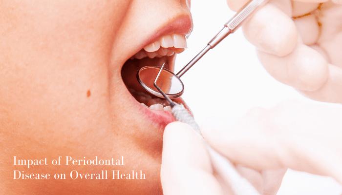 Periodontal Disease Treatment - Vistadent
