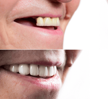 Cosmetic-Smile-Designing-Vistadent-1