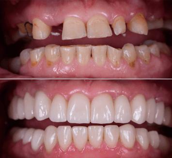 Cosmetic-Smile-Designing-Vistadent-2