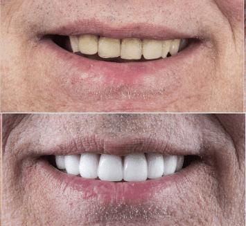 Cosmetic-Smile-Designing-Vistadent-3