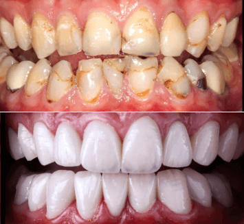 Cosmetic-Smile-Designing-Vistadent-4