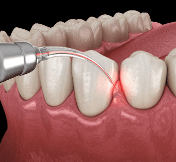 Restorative-Dentistry-At-Vistadent
