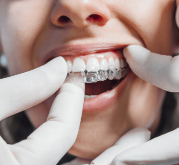 Invisalign-Treatment-At-Vistadent