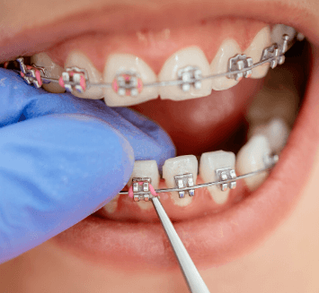 Orthodontic-Treatment-Vistadent