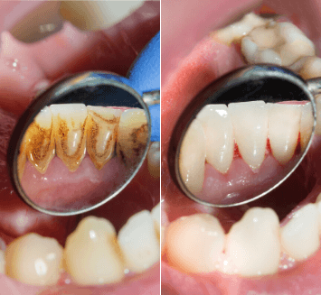 Periodontal-Treatment-Vistadent