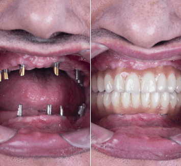Prosthetic-Replacement-of-Teeth-Vistadent