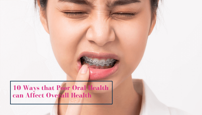 10-ways-that-poor-oral-health-can-affect-overall-health