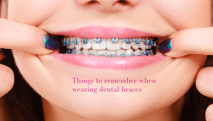Things-to-remember-when-wearing-dental-braces