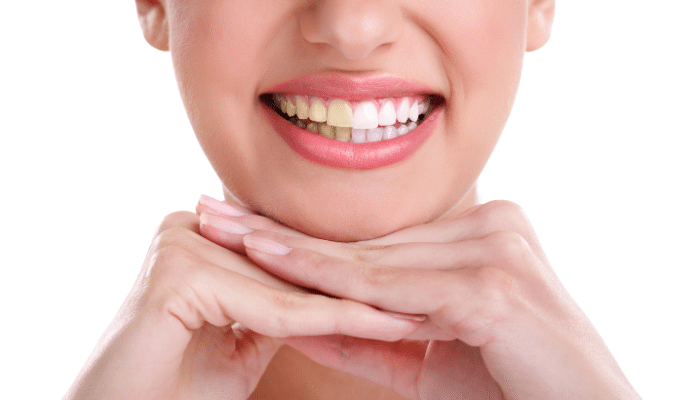 tricks to keep your teeth white and healthy
