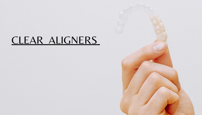 clear aligner therapy
