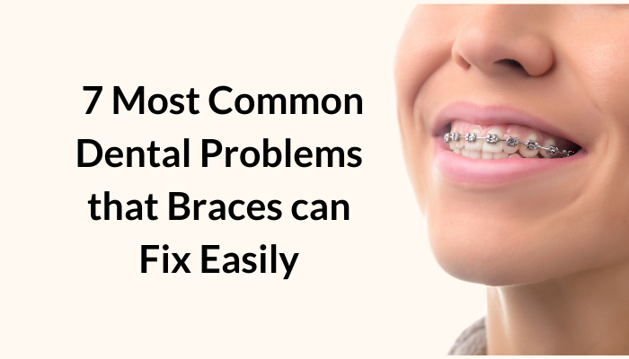 7 most common dental problems that braces can fix easily