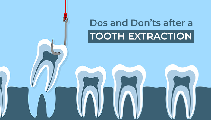 dos and don'ts after a tooth extraction