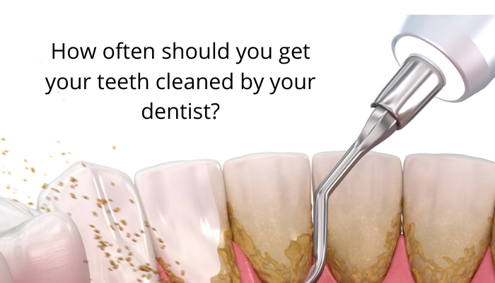 How often should you get your teeth cleaned by your dentist