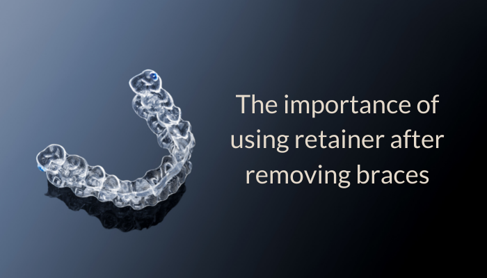The importance of using a retainer after removing braces