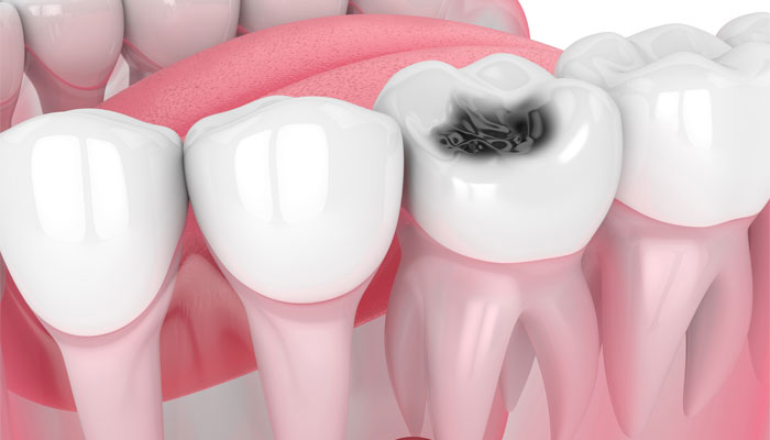 best treatment options for dental cavities