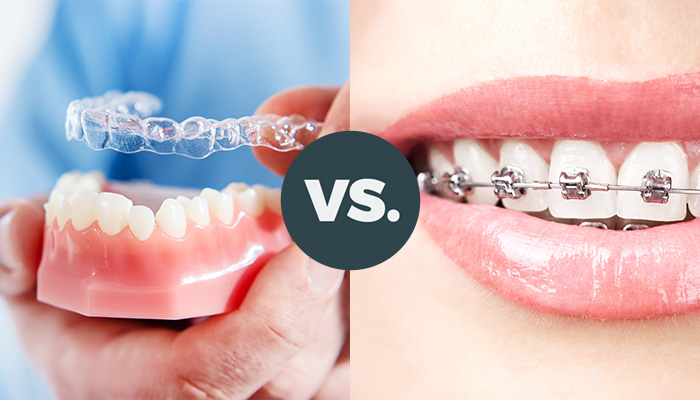 differences between aligners and braces