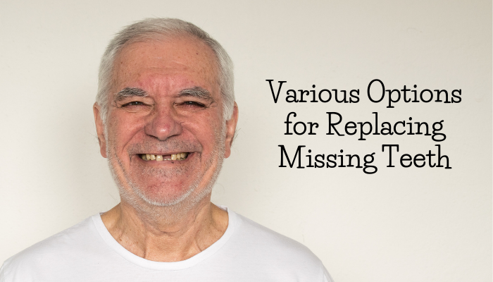 teeth replacement options